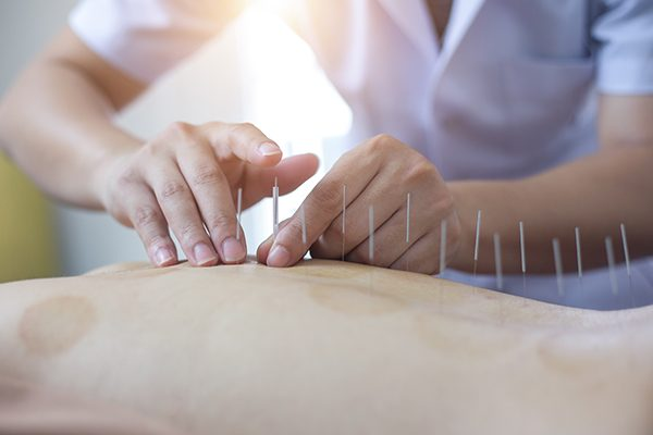 Acupuncture, Cupping, and Dry Needling at Stonehouse Physiotherapy in Neepawa, Manitoba, Canada